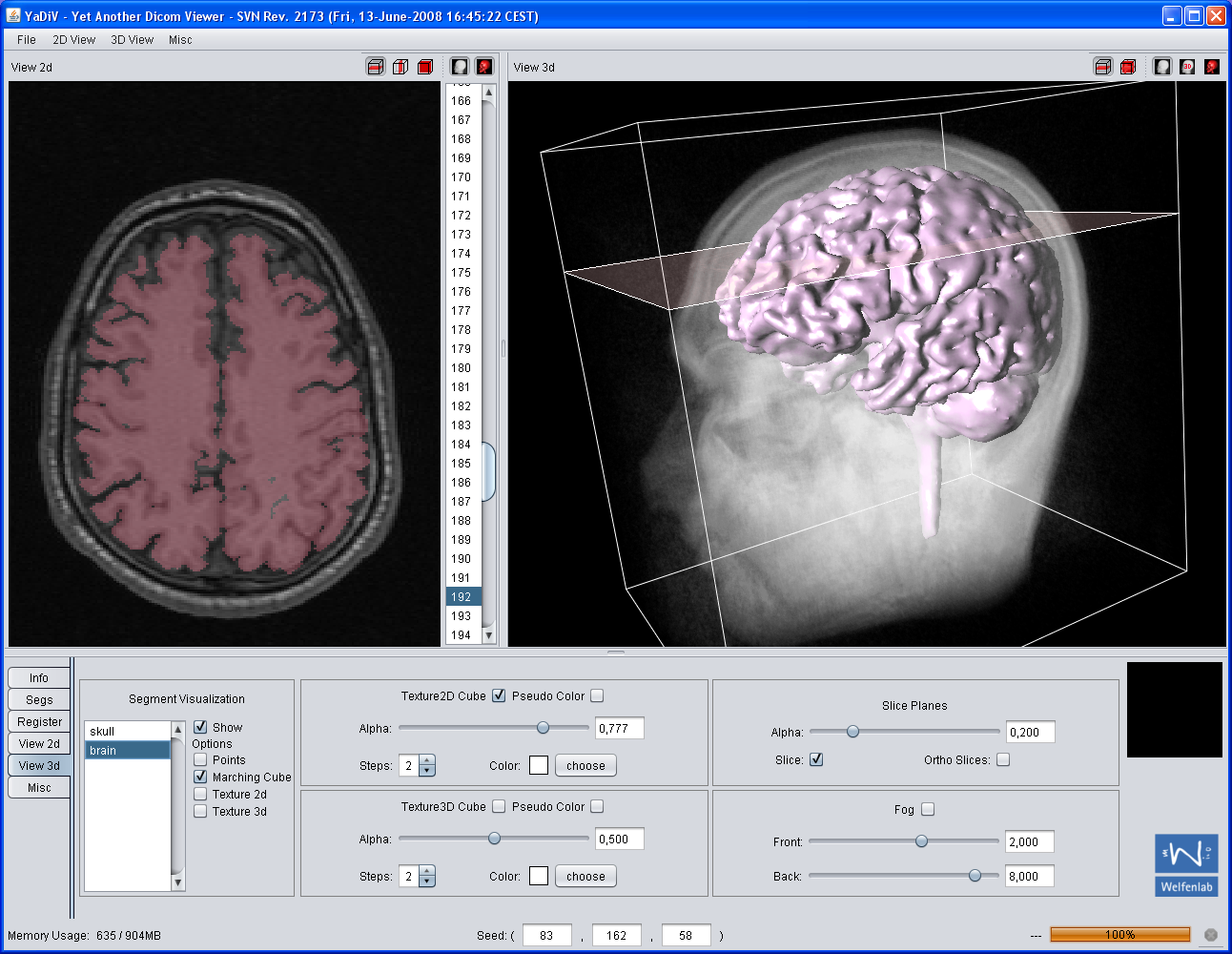 computed tomography screenshot